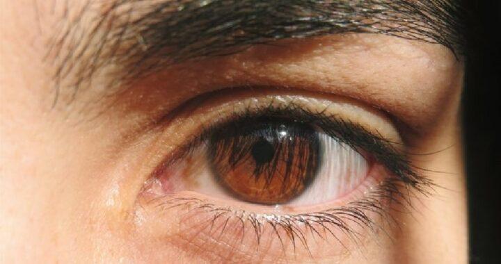 Río Negro: Se realizó el primer operativo doble de donación de tejido corneal